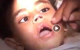 كارثة بالفيديو ... ام تقطع العضو الذكري لطفلها وتحرقه بالنار والسبب صادم ..
